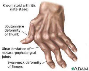 Aamvata-arthritis